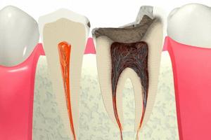 虫歯治療における差し歯