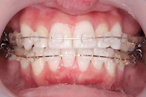 親知らず抜歯の費用(保険なし・無保険)
