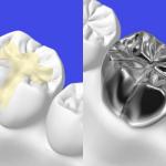 銀歯と白い歯