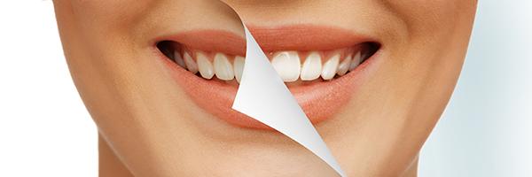 歯が白くなる