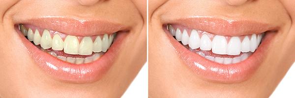 歯が白くなる仕組み