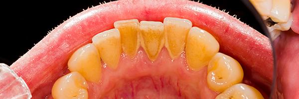 歯の茶色の染み