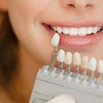 白い歯を保つ秘訣