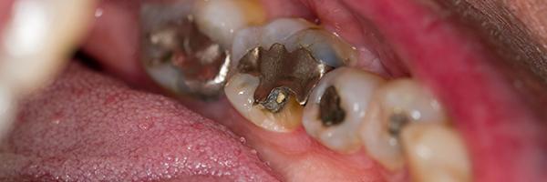 詰め物が多い歯