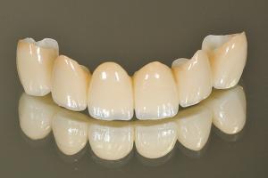 差し歯の技工物