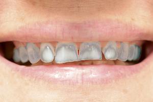 歯がねずみ色