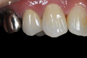 銀歯が目立つ