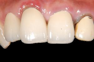 保険の前歯