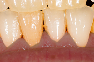 歯ぐきが黒い
