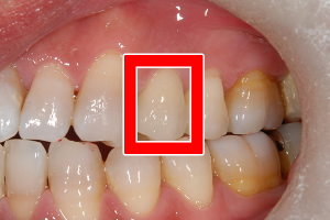 4番目の歯