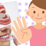 矯正歯科の無料相談で確認するべき4つのコト