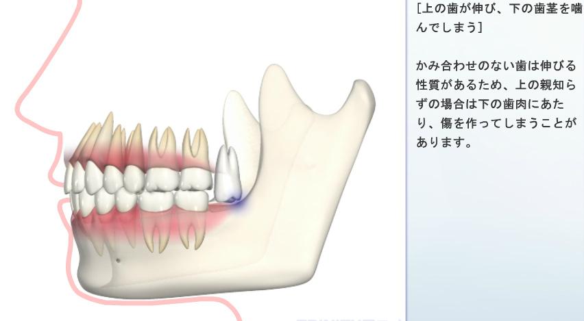上の歯が伸び、下の歯ぐきを噛む