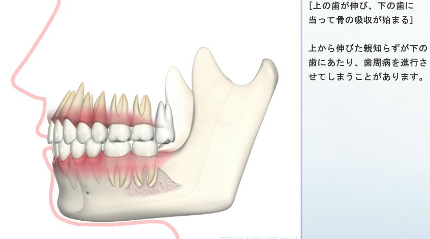 下の歯に当たって骨の吸収が始まる
