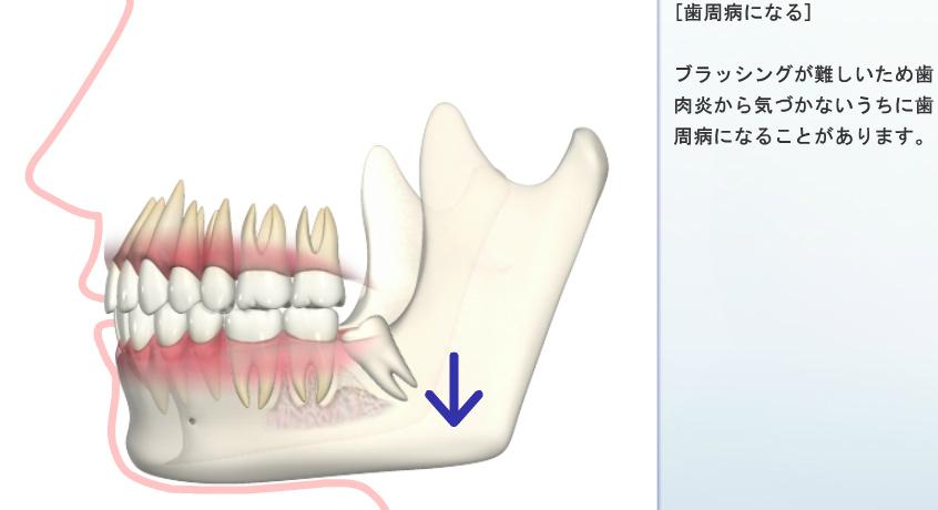 歯周病になる