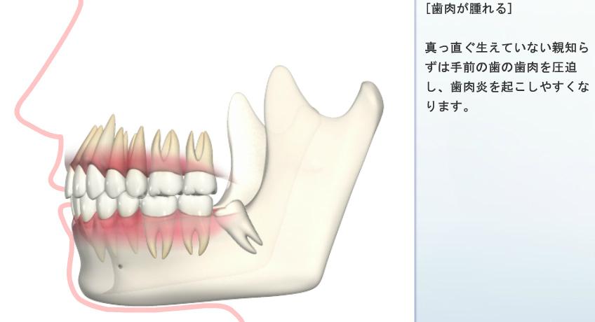 歯肉が腫れる