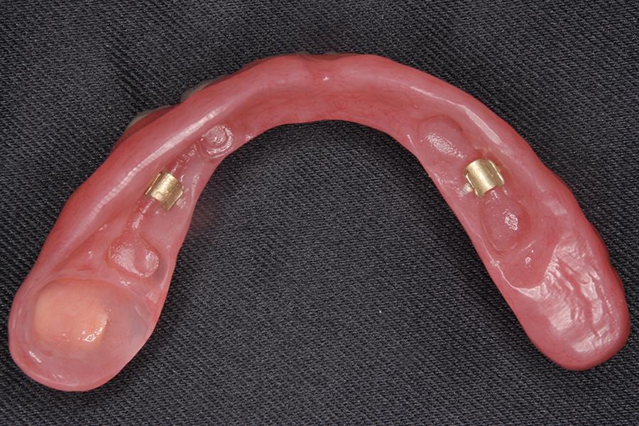 インプラントバータイプ義歯