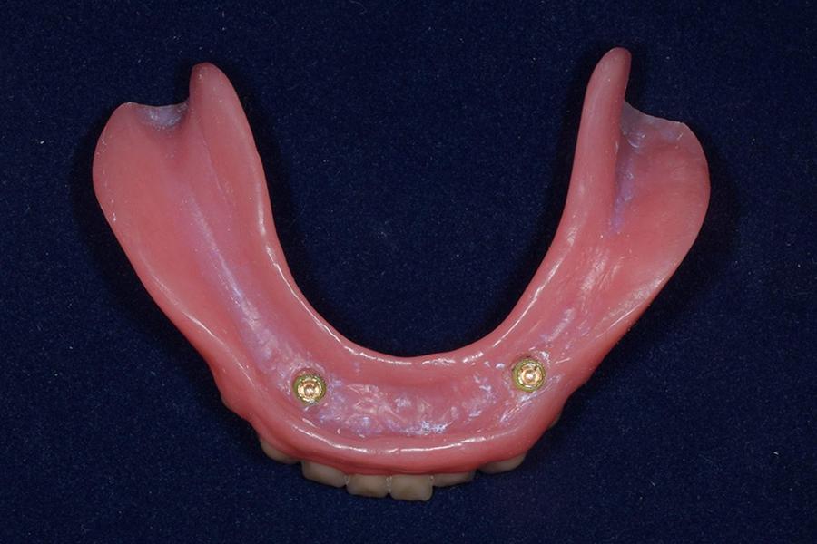 インプラントボールタイプ義歯