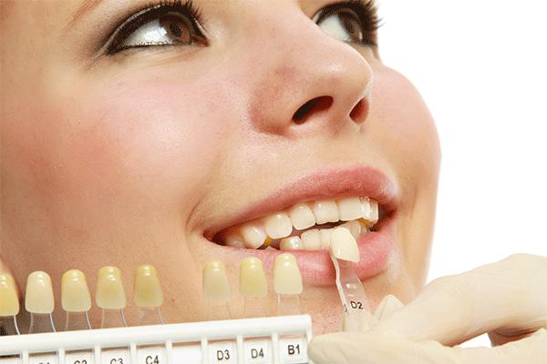 ホワイトニング効果を得られる歯