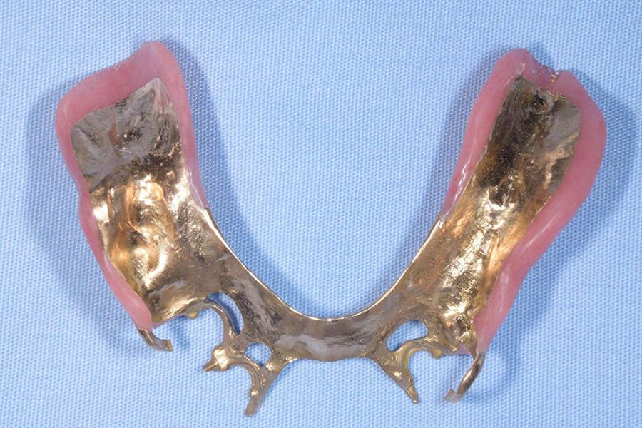 白金加金床義歯の裏側