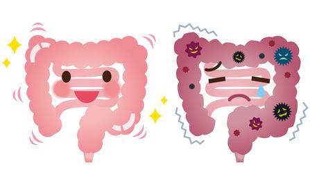 健康な大腸と病気の大腸