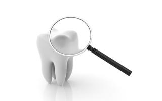歯の脱灰と再石灰化