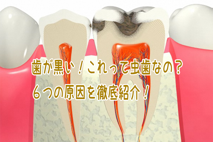 歯が黒い6つの原因