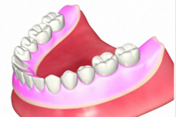 歯並びの確認(排列試適)