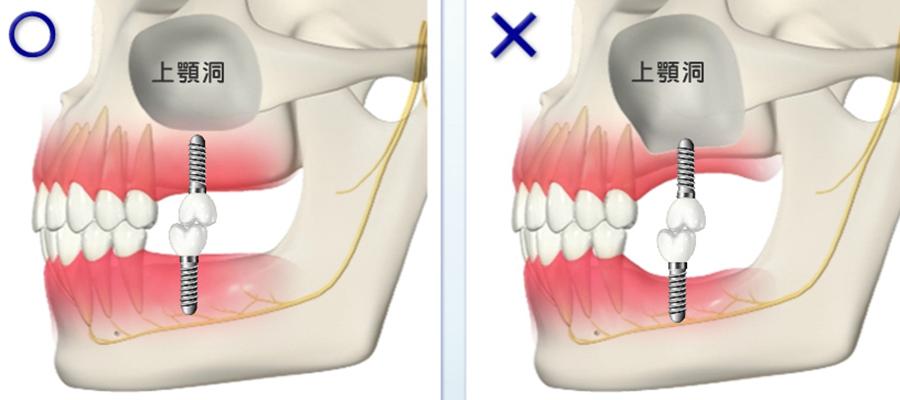 骨の位置や量を把握