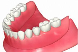 入れ歯の粘着力