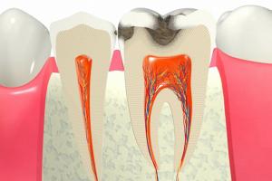 虫歯が深い