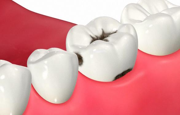 虫歯になりやすい不潔域