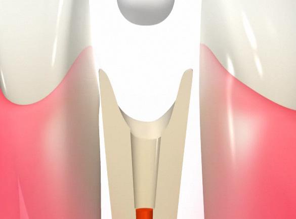 歯の内部にワイヤーを固定する