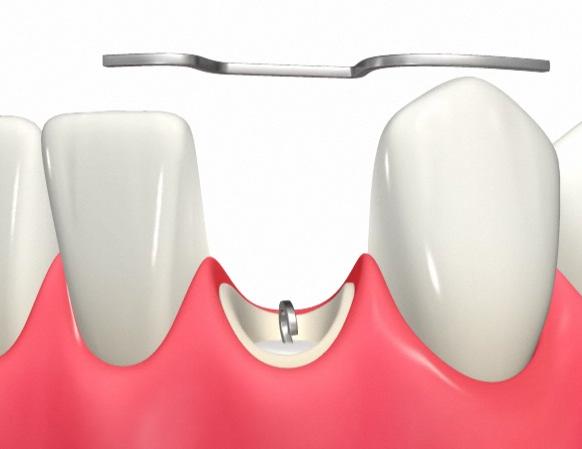 引っ張られる歯の両隣に橋を設けてゴムで引っ張る