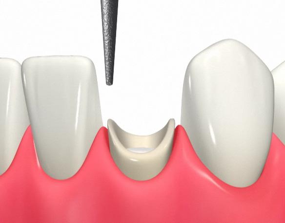 引っ張り上げた歯の形を整える