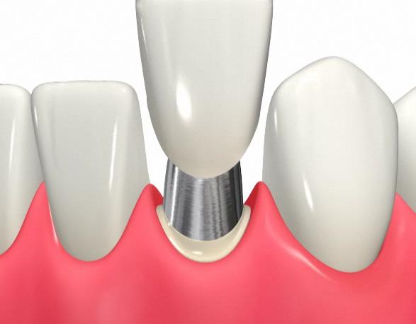 差し歯を作る