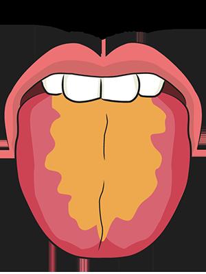 紅舌黄膩苔