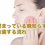 埋伏抜歯の流れ