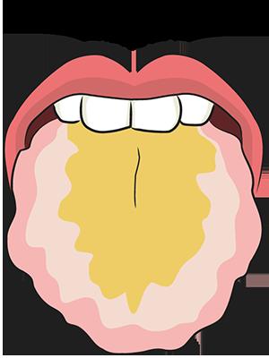 歯痕黄苔舌