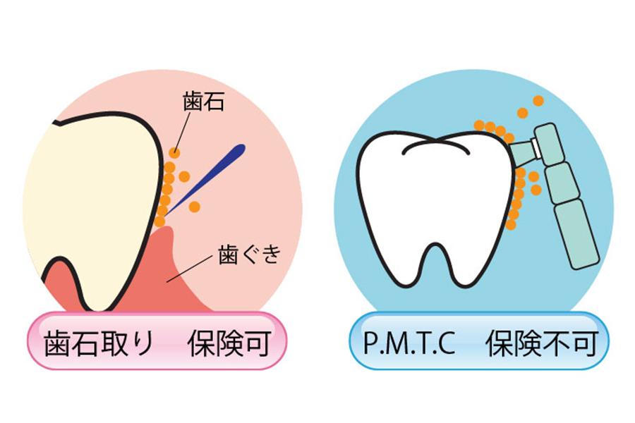 歯石取りとPMTC