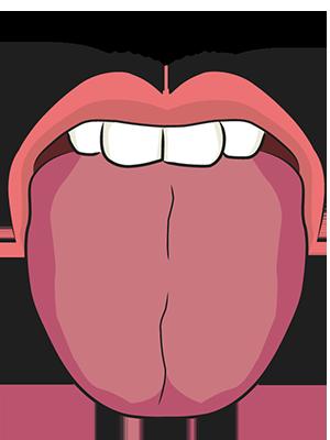 青紫裂紋舌