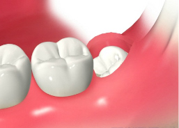 歯ぐきを切開する