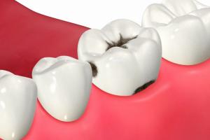 隣接面の虫歯
