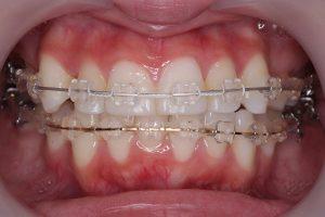 みおの抜歯矯正体験記