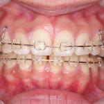 抜歯矯正体験記