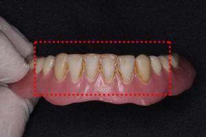 デンチャープラークが付着した入れ歯
