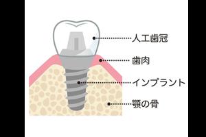 インプラント骨