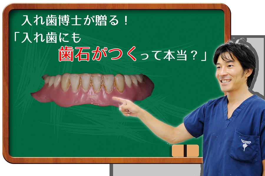 入れ歯にも歯石