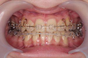 抜歯矯正治療体験記
