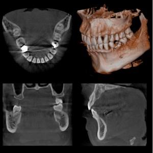 親知らずの抜歯のCT撮影費用