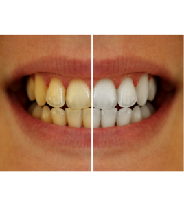Whitening and ceramic